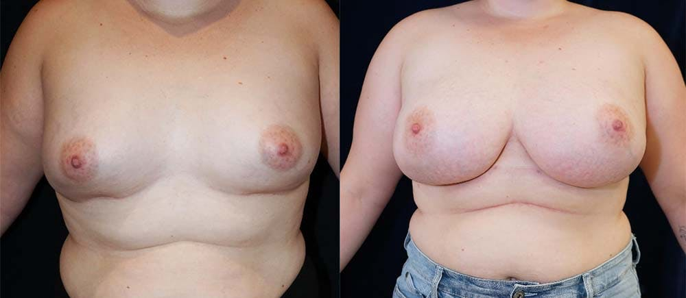 Breast Augmentation Gallery - Patient 47118719 - Image 1