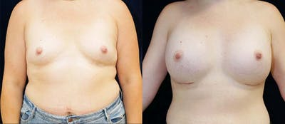 Breast Augmentation Gallery - Patient 47119384 - Image 1