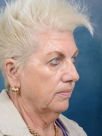 Facelift Gallery - Patient 4520758 - Image 1