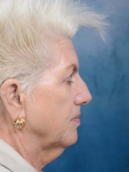 Facelift Gallery - Patient 4520758 - Image 5