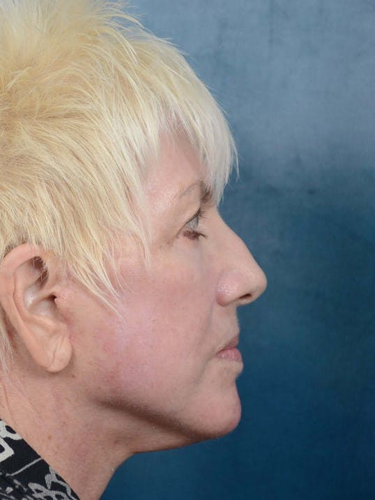Facelift Gallery - Patient 4520758 - Image 6