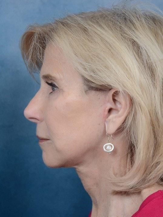 Facelift Gallery - Patient 4520759 - Image 6