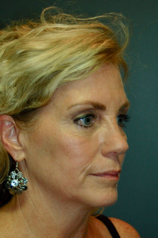 Facelift Gallery - Patient 4521009 - Image 3
