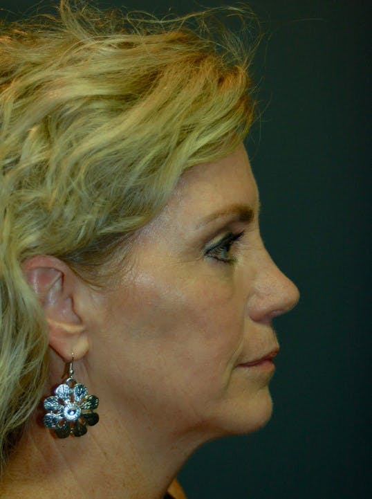 Facelift Gallery - Patient 4521009 - Image 5