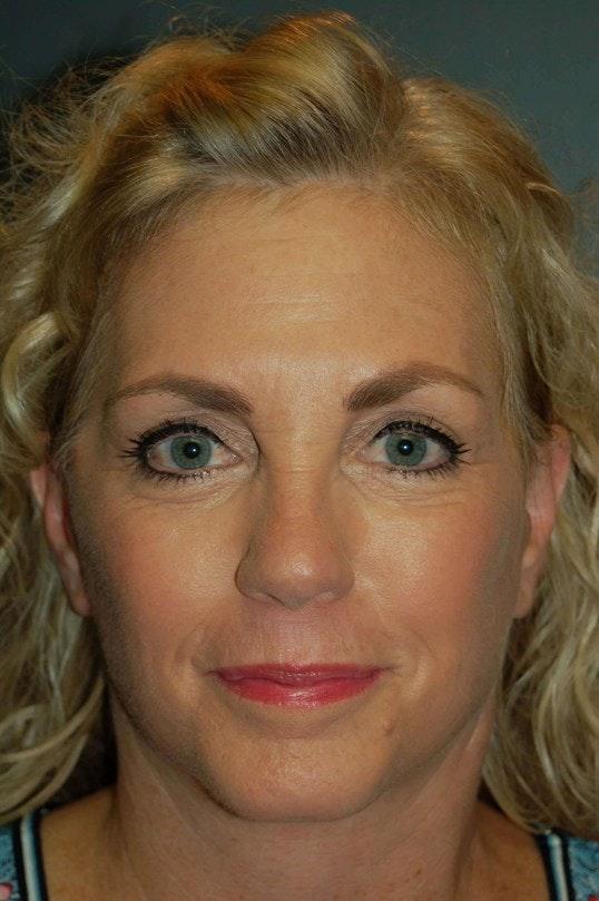 Facelift Gallery - Patient 4521009 - Image 2