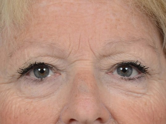 Eyelid Lift Gallery - Patient 4521015 - Image 1