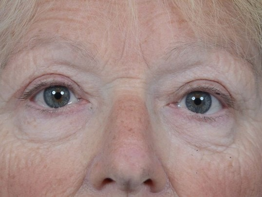 Eyelid Lift Gallery - Patient 4521015 - Image 2