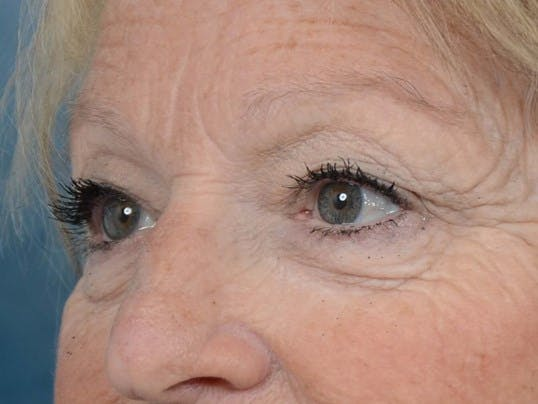 Eyelid Lift Gallery - Patient 4521015 - Image 3