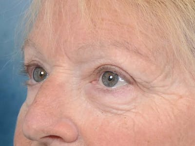 Eyelid Lift Gallery - Patient 4521015 - Image 4