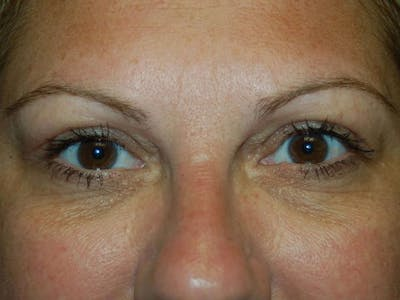 Eyelid Lift Gallery - Patient 4521016 - Image 2