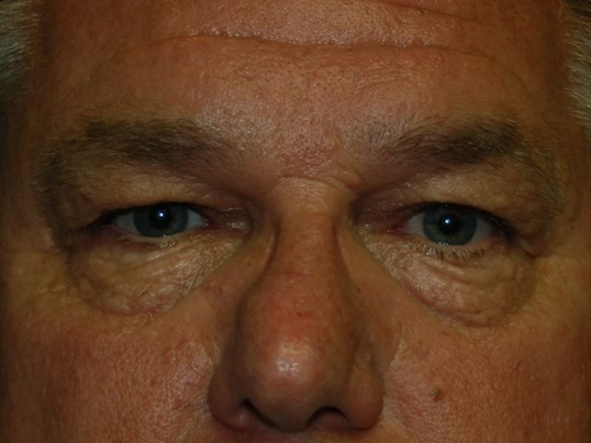 Eyelid Lift Gallery - Patient 4521017 - Image 3