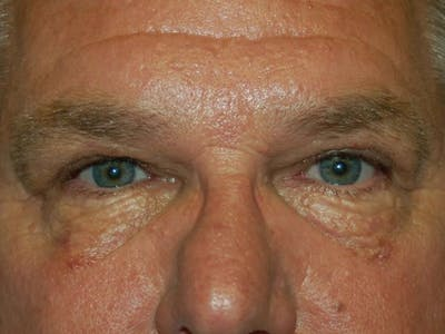Eyelid Lift Gallery - Patient 4521017 - Image 2