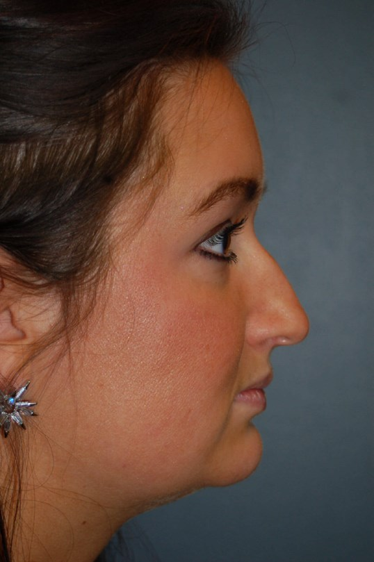 Rhinoplasty Gallery - Patient 4521037 - Image 2