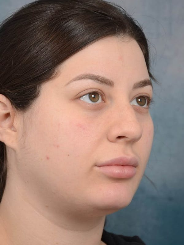 Rhinoplasty Gallery - Patient 4521036 - Image 3