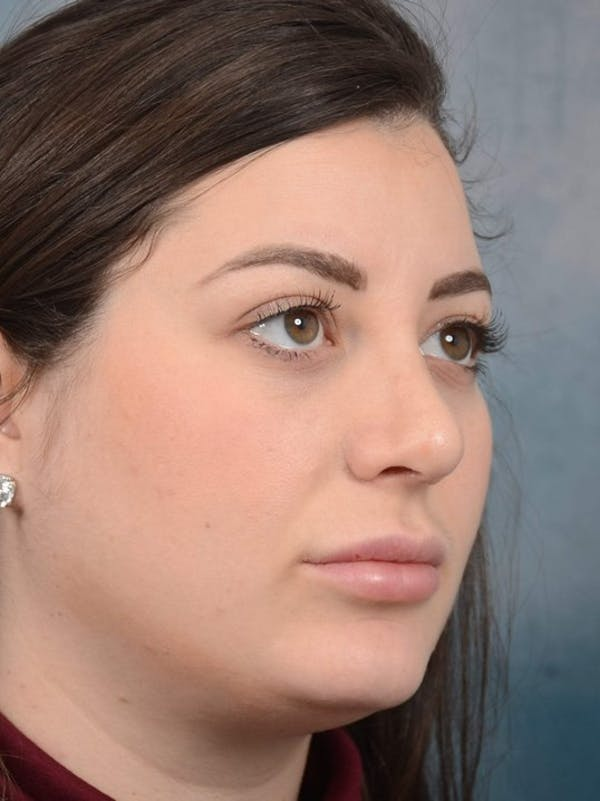 Rhinoplasty Gallery - Patient 4521036 - Image 4