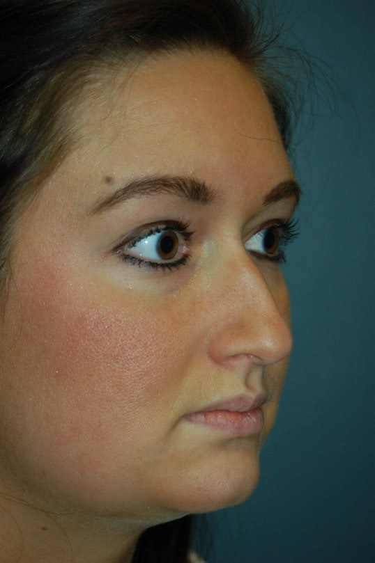 Rhinoplasty Gallery - Patient 4521037 - Image 3