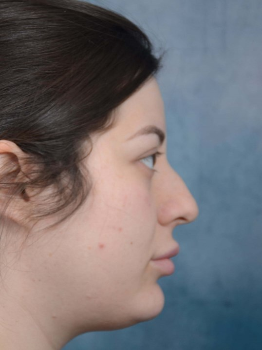 Rhinoplasty Gallery - Patient 4521036 - Image 7