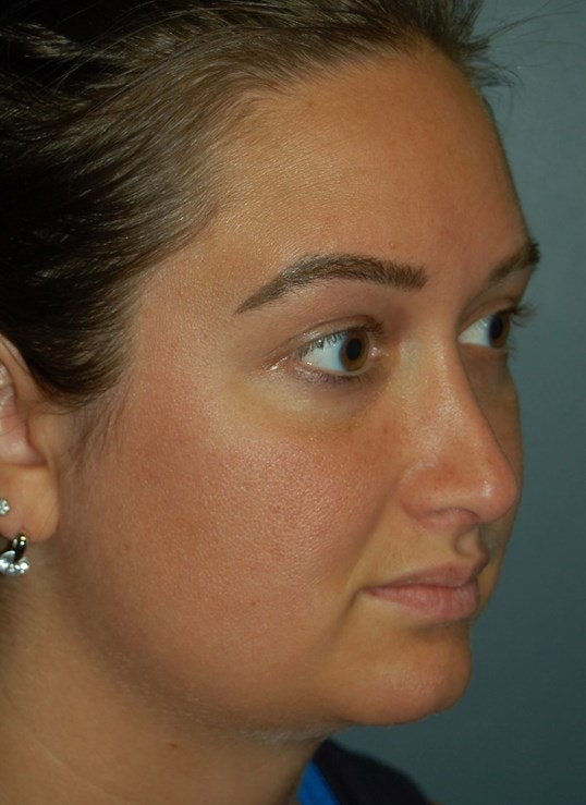 Rhinoplasty Gallery - Patient 4521037 - Image 4