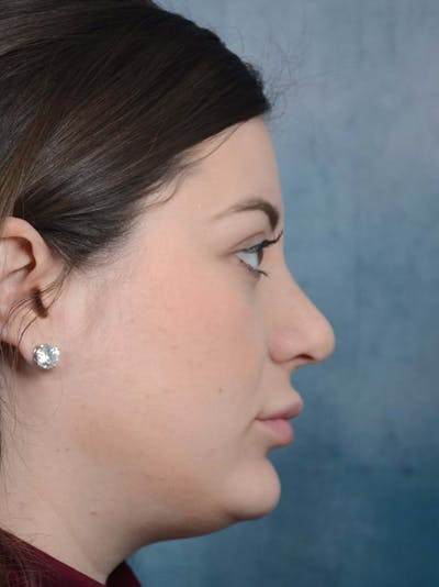 Rhinoplasty Gallery - Patient 4521036 - Image 2