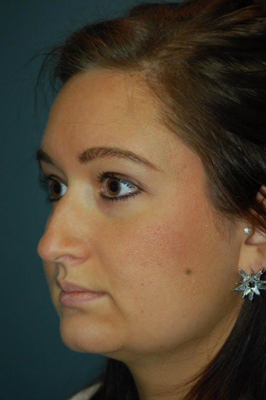 Rhinoplasty Gallery - Patient 4521037 - Image 5