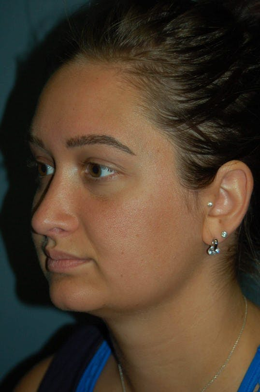 Rhinoplasty Gallery - Patient 4521037 - Image 6