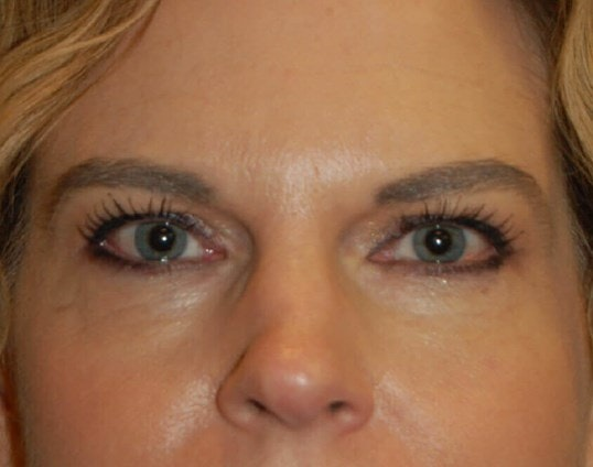 Chemical Peel Gallery - Patient 4521068 - Image 1