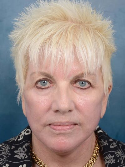 Laser Skin Resurfacing Gallery - Patient 4521077 - Image 2