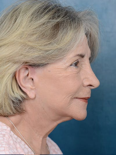 Laser Skin Resurfacing Gallery - Patient 4861579 - Image 6