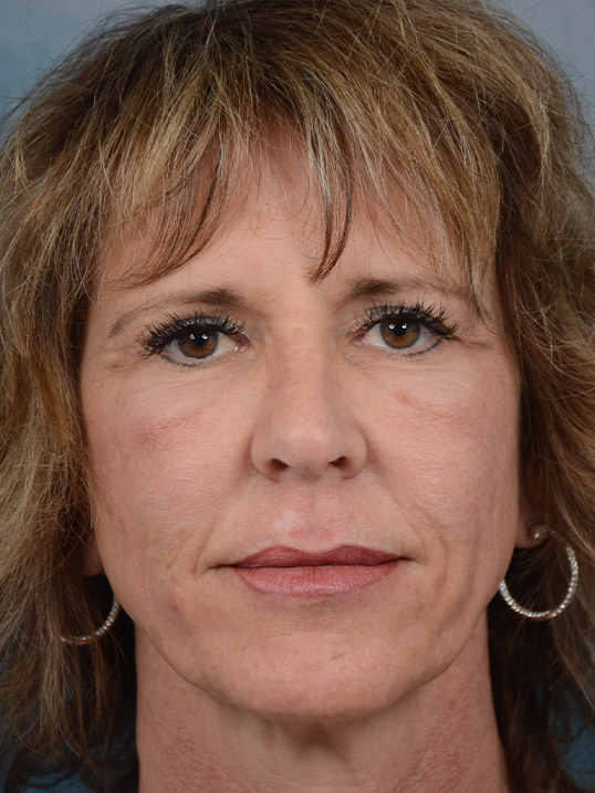 Laser Skin Resurfacing Gallery - Patient 4861587 - Image 3