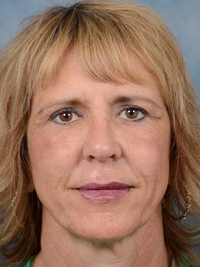 Laser Skin Resurfacing Gallery - Patient 4861587 - Image 2