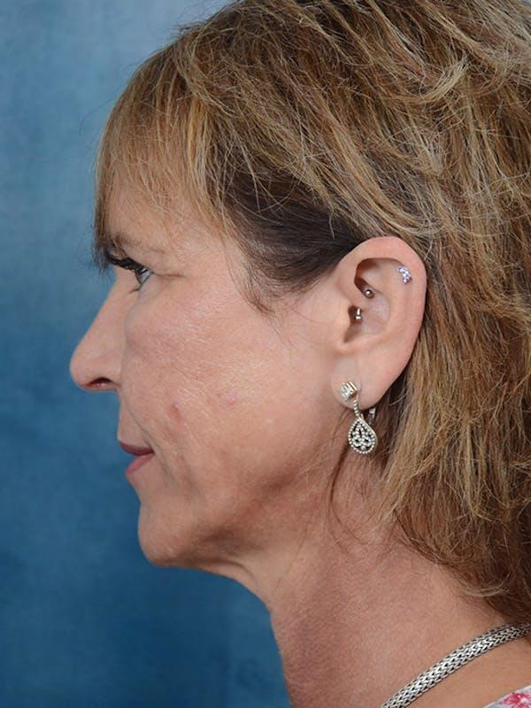 Laser Skin Resurfacing Gallery - Patient 4861587 - Image 5