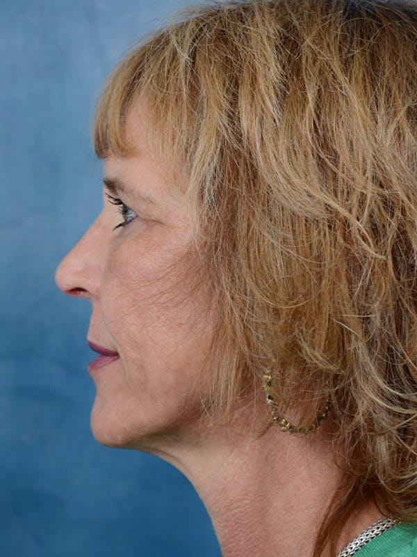 Laser Skin Resurfacing Gallery - Patient 4861587 - Image 6