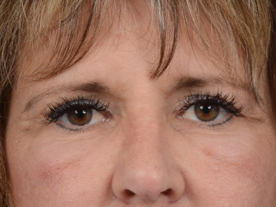 Eyelid Lift Gallery - Patient 4861743 - Image 1