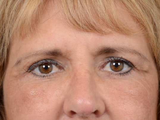 Eyelid Lift Gallery - Patient 4861743 - Image 2