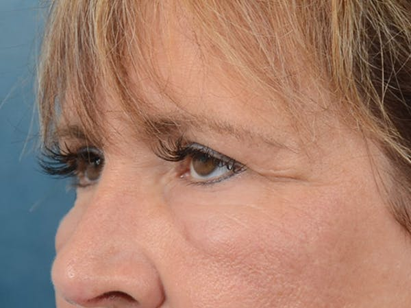 Eyelid Lift Gallery - Patient 4861743 - Image 3