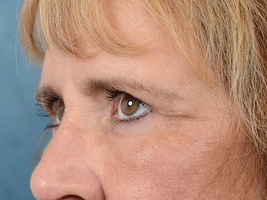 Eyelid Lift Gallery - Patient 4861743 - Image 4