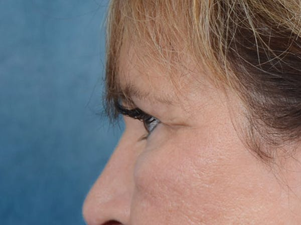 Eyelid Lift Gallery - Patient 4861743 - Image 5