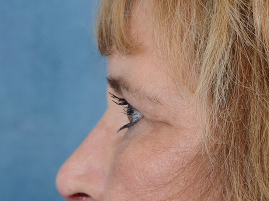Eyelid Lift Gallery - Patient 4861743 - Image 6
