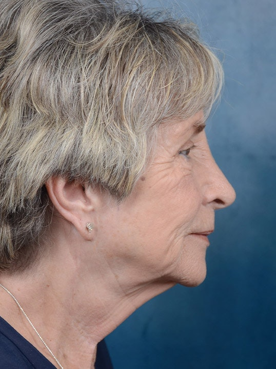 Facelift Gallery - Patient 4861561 - Image 5