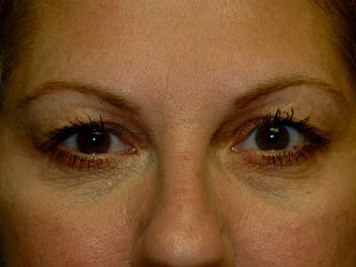 Eyelid Lift Gallery - Patient 4521016 - Image 1