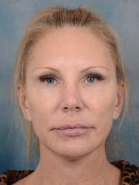 Laser Skin Resurfacing Gallery - Patient 5205187 - Image 1