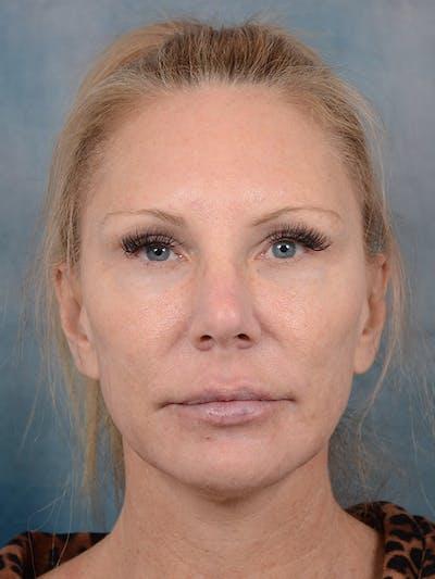 Laser Skin Resurfacing Gallery - Patient 5205187 - Image 1