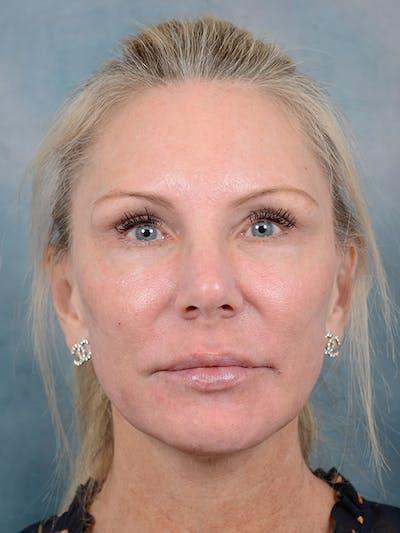 Laser Skin Resurfacing Gallery - Patient 5205187 - Image 2
