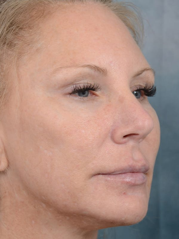 Laser Skin Resurfacing Gallery - Patient 5205187 - Image 3