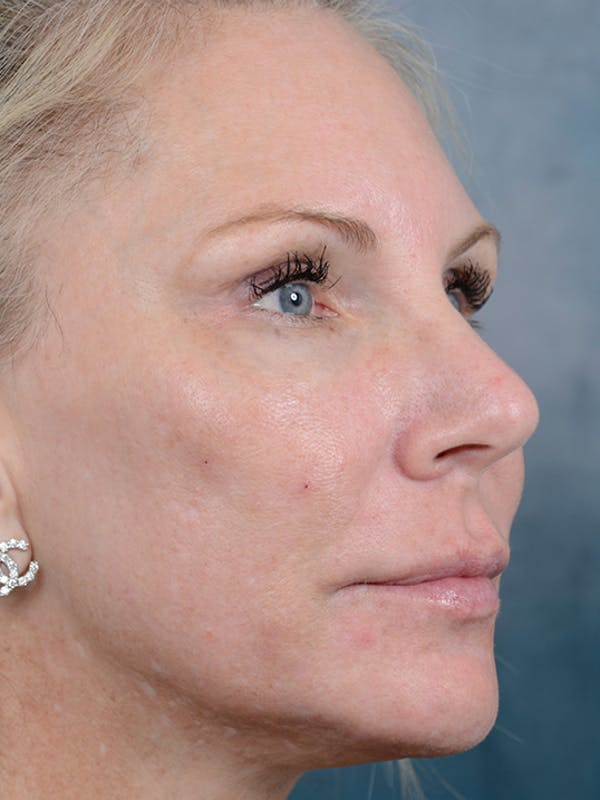 Laser Skin Resurfacing Gallery - Patient 5205187 - Image 4