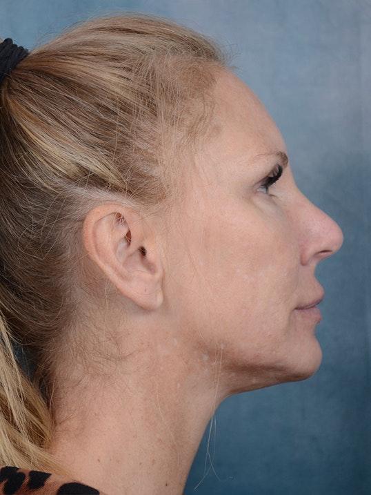 Laser Skin Resurfacing Gallery - Patient 5205187 - Image 5