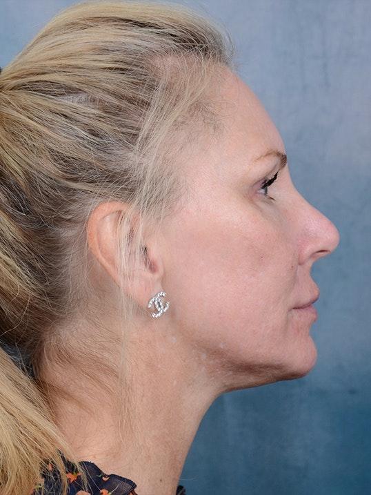 Laser Skin Resurfacing Gallery - Patient 5205187 - Image 6
