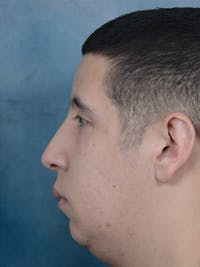 Rhinoplasty Gallery - Patient 5219825 - Image 1