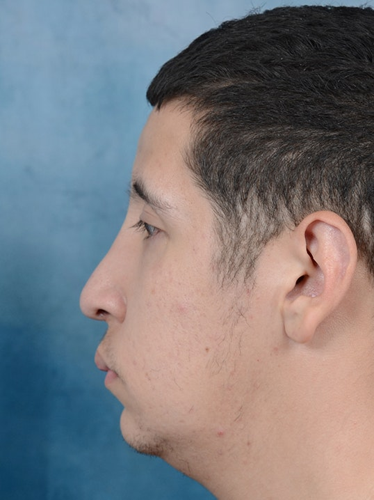 Rhinoplasty Gallery - Patient 5219825 - Image 6