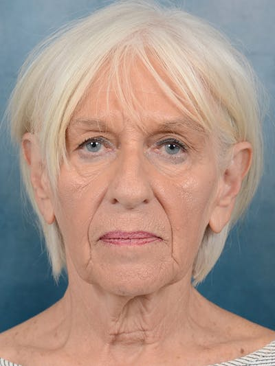 Facelift Gallery - Patient 5834122 - Image 1